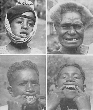 Dieta para emagrecer parte 2 - Foto de crianças com dentes acavalados retirada do livro Nutrition and Physical Degeneration de Weston A. Price